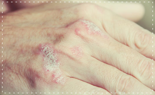 Longuent salicylique pour le psoriasis